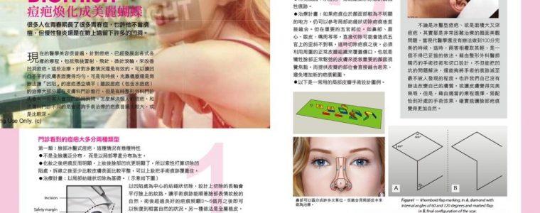 【周爾康醫師專欄】痘疤幻化成美麗蝴蝶