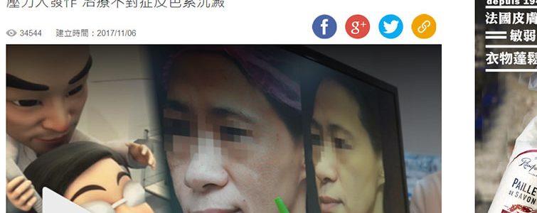蘋果日報報導-雷射做10年 女主管肝斑變黑臉