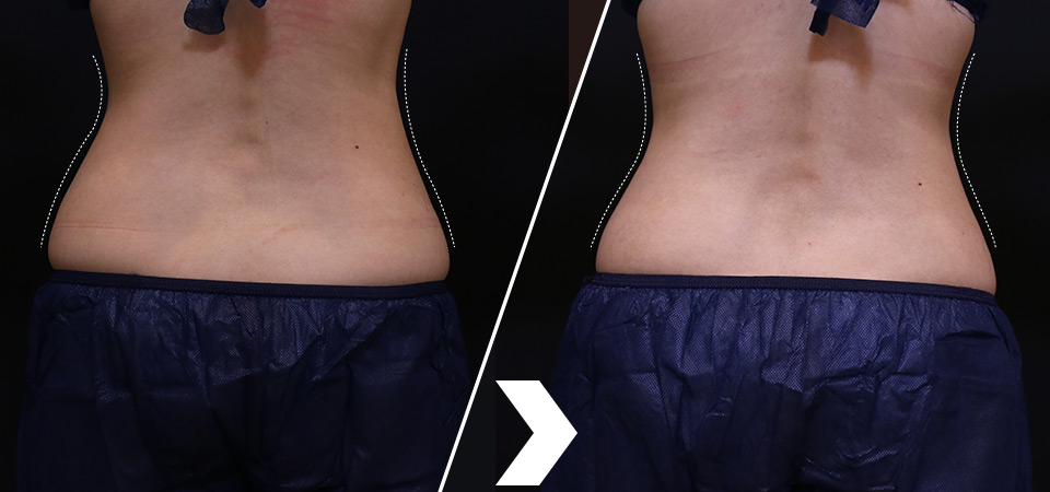 酷爾塑平(酷塑)coolsculpting 療程腰部背面