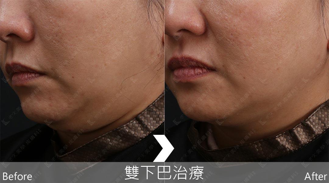 AGNES於於雙下巴治療改善結果