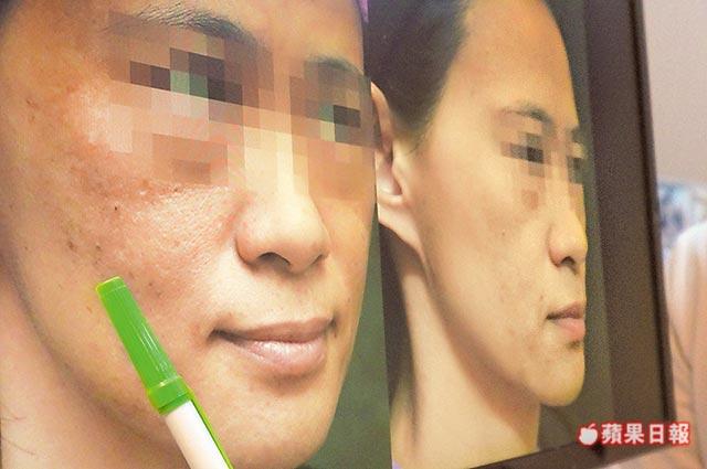 蘋果日報報導雷射做10年 女主管肝斑變黑臉